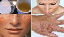 Prirodni kosmetika strava uklid