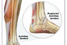 Achilles injury