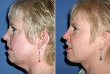 Facial Aerobics For Treating Neck And Face Furrows / Sexy Face Aerobics Regimens For All Ages: Acquire Relief From Sagging Face Tissue And Cavernous Creases And Lines