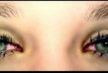 Com os olhos vermelhinho igual japonezinho