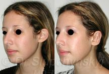 Otoplasty - Ear Surgery / Medical/Cosmetic