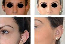 Chirurgie de l'oreille / L'otoplastie corrige les oreilles décollées.