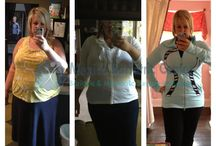 WLS Before and After Photos / by Mexico Bariatric