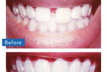 Invisalign / Get Invisalign for as low as $115 a month with NO down Payment when you qualify at www.CareCredit.com!