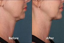 Kybella Therapy
