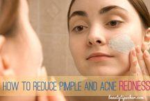 Acne redness