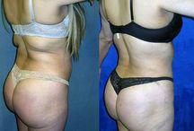 liposuction- Brazilian butt lift