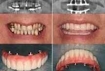 """Le prix d'all on 4 á Budapest, Hongrie / Si vous portiez une prothèse à ce jour et vous n'êtes pas satisfait, votre capacité à mâcher peut être restaurée par le placement de la solution """"All on 4"""". Ni la greffe osseuse, ni le sinus lift n'est nécessaire, donc le cout total """"All on 4"""" pour un arc cout 5922 EUR. Ce prix comprend quatre implants dentaires et des piliers, un balayage 3D, les frais chirurgicaux, des médicaments , une prothèse provisoire et une prothèse définitive """"All on 4"""". Donc, pas de coûts cachés."""