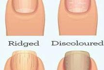 Finger Nail Trips
