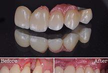 Dentalcrowns