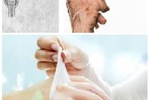 Terapia masážou