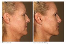 Treat Me Right / The latest non-invasive beauty treatments with no surgery involved.