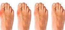 #healthi#feet