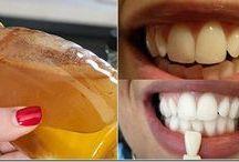 diş temizligi