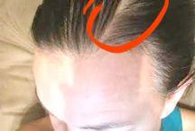 Rogaine for Women - Hairloss