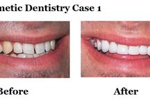 Cosmetic Dentistry Cases / You never get a second chance to make a first impression