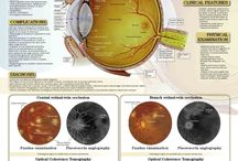 Ocular Vein Occulusion / Eye care for people living with ocular vein occulusion.