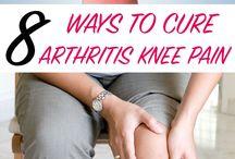 KNEES ARTHRITIS