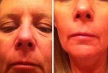 Face Renewal Workouts As The Best Face Workout Solution / Facial Yoga Exercises For Generating A Natural Facelift