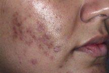 Scars, skin