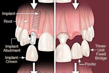 Dental information
