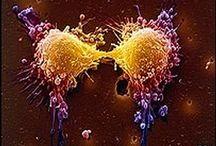 cancer sandrine