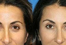 Facial Rejuvenation / Do you see your mother looking back at you in the mirror?