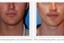 Jaw Implants with Silicone Seattle | Bellevue