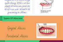 Gum Abscess / Gum Abscess is a periodontal disease.