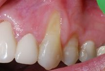 Perioderm to treat severe recession with an acellular dermal graft.