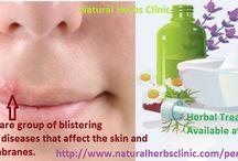 Pemphigus Natural Herbal Treatment