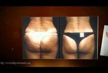 Celulitis Nunca Mas Gratis| Cellulite