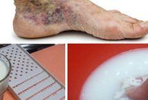 Viszérre lábápoló krém