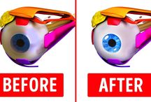 effective eye excercises to improve vision