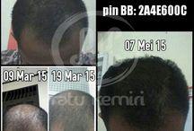 Testimoni Obat Penumbuh Rambut Botak Alami Ratu Kemiri / Testimoni asli mengenai obat penumbuh rambut botak alami dari Ratu Kemiri. WA 0878 2338 1610, BBM 2BEB4CE4.