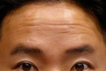 Facial Gymnastics And Remedies To Rub Out Or Decrease Frown And Forehead Furrows / Non-Invasive Facelift Tasking Face Renewal Aerobics