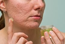 Acne Scars / Acne Scars cure tips and tricks. Visit this website http://intreviews.com/?s=acne+scars