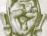 Birth. Breech