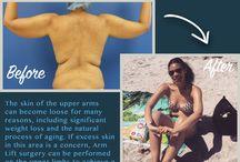 Brachioplasty / Arm Lift