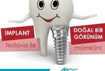 Diş Estetiği Ağız ve Diş Sağlığı / Ağız, Diş ve Çene Hastalıkları Cerrahisi Çene Eklemi Rahatsızlıkları Endodonti (Kanal Tedavileri) Estetik Diş Hekimliği Oral İmplantaloji Ortodonti Ünitesi Pedodonti (Çocuk Diş Hekimliği) Periodontoloji (Dişeti Hastalıkları) Protezler Konservatif (Restoratif) Diş Tedavileri Halitosis (Ağız Kokusu)