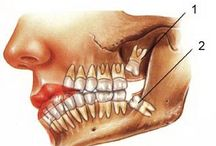 Maxillofacial Surgery in Delhi / We have highly advanced centres of trauma care and surgical theatres for undertaking complicated maxillofacial surgery in Delhi, and for this reason, the maxillofacial surgeon in India finds it comfortable to operate upon different cases in our set up for patient benefits and long term solutions.http://www.dentalimplantsclinicindia.com/maxillofacial-surgery/