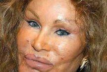 Plastic Surgery Celebrities