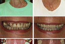 Smile Design / Dr Richard and his staff are highly skilled in all forms of cosmetic as well as general dentistry. Having worked in one of the top cosmetic dental practices in the Harley Street region of London where he was mentored and trained by a world-renowned cosmetic dentist, he has placed in excess of 1000 veneers and 500 implants - all with excellent results.