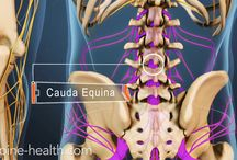 "Cauda Equina Syndrome / Cauda equina syndrome is a relatively rare but serious condition that describes extreme pressure and swelling of the nerves at the end of the spinal cord. It gets its name from Latin,""horse's tail,"" because the nerves at the end of the spine visually resemble a horse's tail as they extend from the spinal cord down the back of each leg."