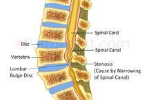 Chronic Neck Pain :-(