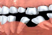 Dental Information