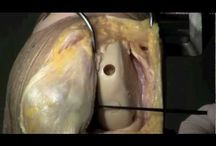 Knee cartilage restoration procedures