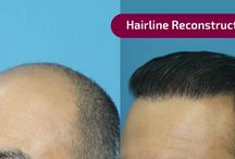 Best Hairline Reconstruction clinic in India