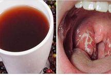 Como se livrar de dor de garganta