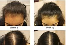 * Health~Fine, Thinning Hair * / #hair #hairloss #alopecia #biotin #stop #hairshedding #vitaminsforhair #regrowthvitamins #hairproducts #arganrainoil #arganoil #arganrain #baldness #hairgrowth #hairregrowth #alopecia #alopeciatreatment #hairfall #hairshedding #baldness #baldnesstreatment #homeremediesforhairloss #arganrainproducts #how #the #music #baldnessolution #healthy #beauty